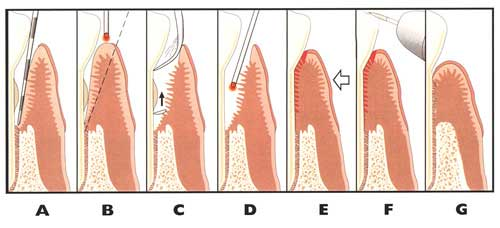 Illustration of the LANAP® laser therapy process.
