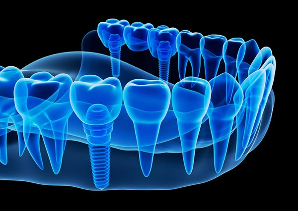 X-ray image of jawbone with dental implant in San Antonio