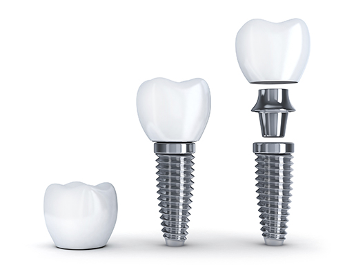 Diagram of dental implant pieces used by Dr. Hosseini in San Antonio, TX