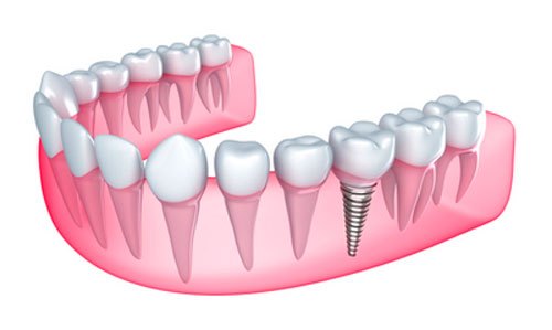 Illustration of dental implant used by Dr. Hosseini in San Antonio, TX