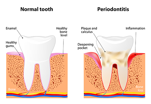 Periodontal Services provided by Dr. Hosseini in San Antonio, TX